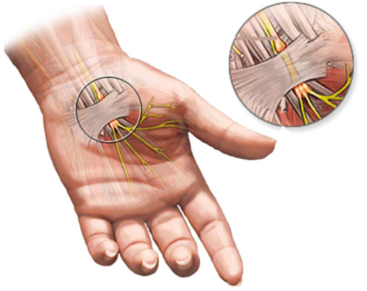 WHAT-IS-CARPAL-TUNNEL-SYNDROME