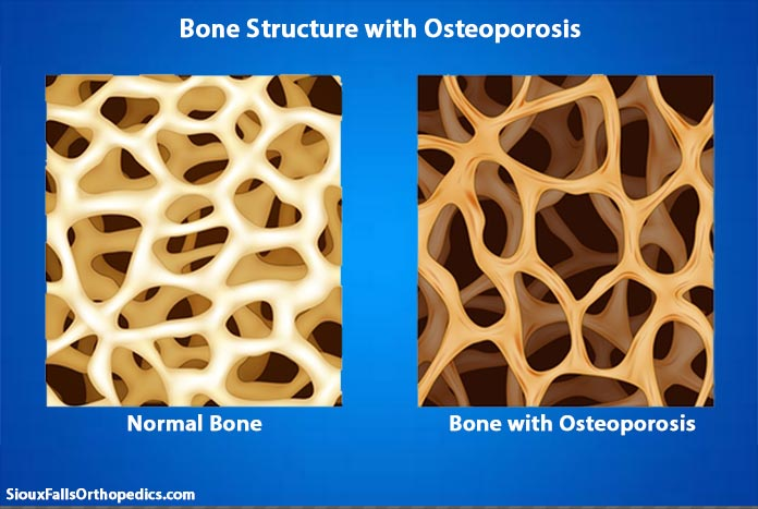 An Introduction to the Osteoporosis