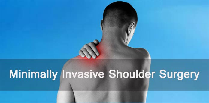 minimally invasive shoulder surgery