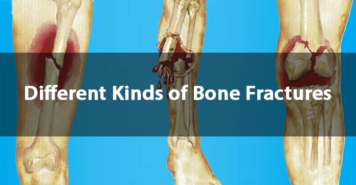 types of bone fractures and facts