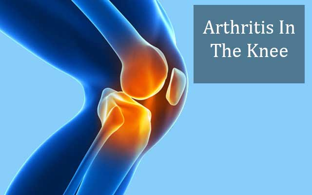 arthritis-in-the-knee